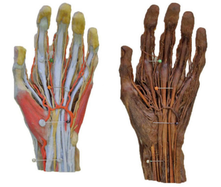 Monash 3D Printed Anatomy Series
