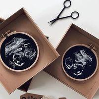 Una madre crea preciosos bordados con imágenes de ecografías