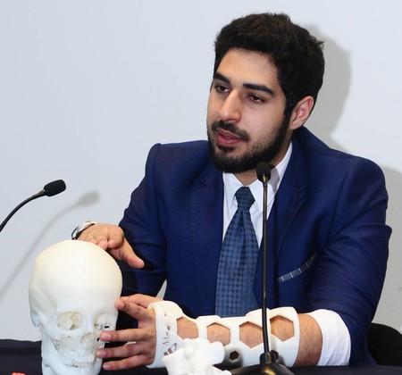 Soluciones médicas en 3D es lo que ofrece MediPrint, empresa de egresados UNAM