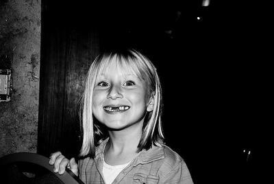 Sorprendentes fotos del proceso de dentición en los niños