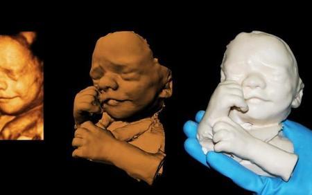 Las verdaderas ecografías en 3D: esculturas del feto