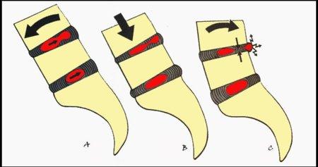 tipos de hernia de disco lumbar