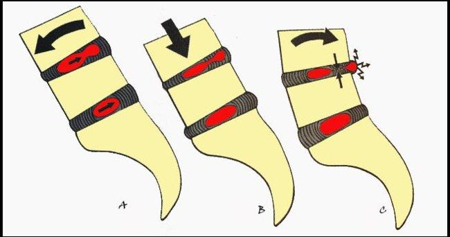 mecanismo-hernia.jpg