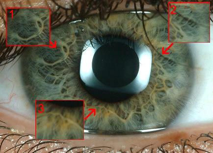 20070609155639-iris-iridologia.jpg