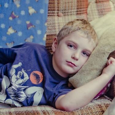 El postoperatorio de la fimosis o circuncisión: cómo es la recuperación de esta operación tan común en niños