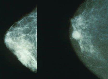 Lugares a los que no deberías ir si quieres conservar una buena salud (I): cáncer