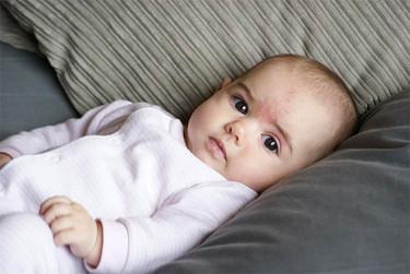 El beso del ángel y la picadura de la cigüeña: manchas rojas en la piel del bebé