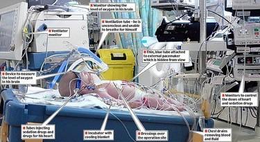 Terapia de frío para salvar la vida de un bebé