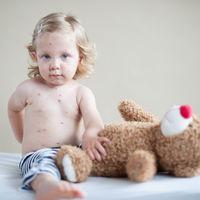Brote de sarampión en Barcelona: ¿por qué es importante completar la vacunación de nuestros hijos?