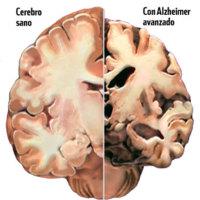 Un nuevo componente de la naturaleza podría colaborar con el Alzheimer