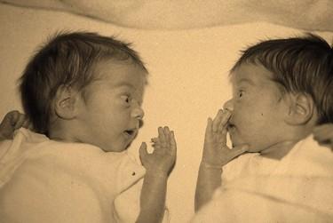 Una mujer estadounidense da a luz a dos bebés de dos úteros