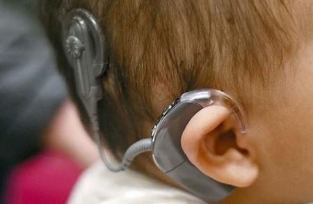 Unos padres piden ayuda para encontrar los implantes cocleares de su hija sorda de dos años: sin ellos no puede oír nada