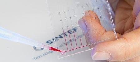 Se acabaron las esperas de los resultados de las pruebas médicas con MicroActive
