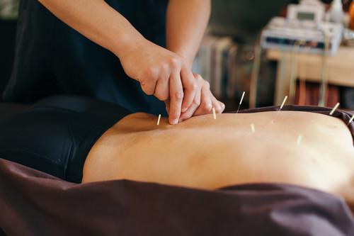 Cuando la acupuntura funciona en realidad no es por las agujas
