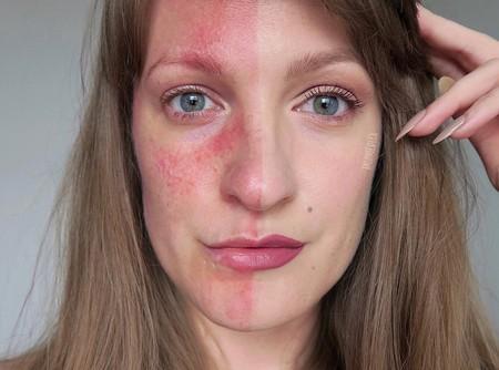 La lucha contra la rosácea se hace viral y body-positive gracias a la campaña #RosaceaNoFilter