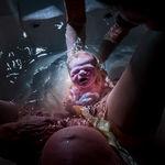 Las mejores fotos internacionales del 2020 del parto y postparto en estado puro