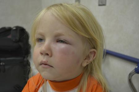 reacción-alergica