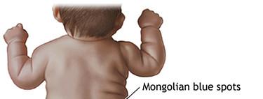 Mi hijo tiene una mancha en la espalda y las nalgas: la mancha mongólica