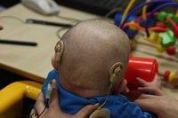 Implante coclear: ¿cuál es el tratamiento?