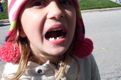 Soprendente foto del cráneo de un niño al que le estaban saliendo los primeros dientes definitivos