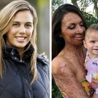 La inspiradora historia de superación de Turia Pitt: la ex modelo que sobrevivió a un incendio ahora es madre