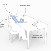 Esta manga tiene WiFi y ayuda en la rehabilitación de pacientes con derrame cerebral