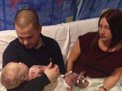 Unos padres comparten las fotos del último día con su bebé, antes de morir de meningitis B