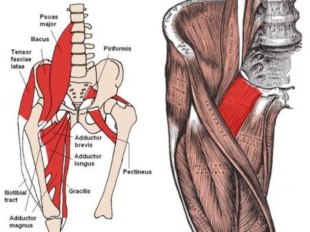 dolor intenso en la ingle y pierna derecha