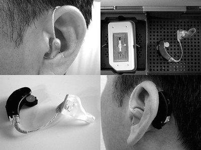 Prótesis auditivas: características y diferentes tipos