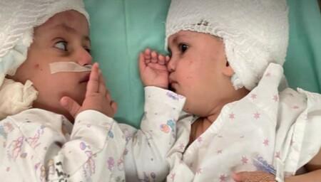 Dos hermanas siamesas unidas por la parte posterior de la cabeza son separadas con éxito en Israel