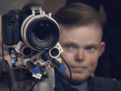 El asombroso invento que hizo que un fotógrafo de 23 años con una enfermedad terminal no abandonara su pasión