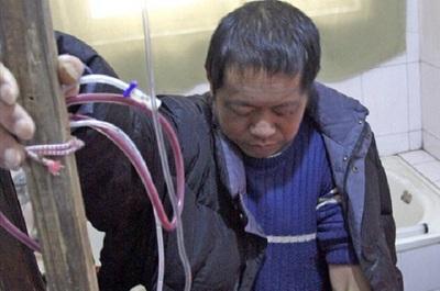 Un ciudadano chino se fabrica su propia máquina de diálisis, ¿llegaremos a esto para ahorrar?