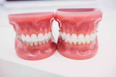 Cómo quitar los aparatos de los dientes con la inestimable ayuda de Adobe Photoshop