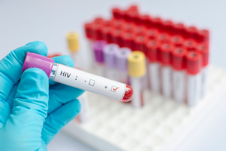Virus Vih Sida Organismo Humano