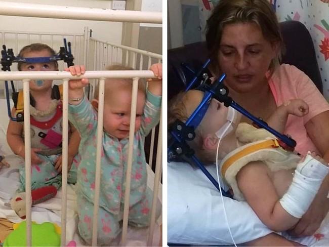 Ambas bebés sufrieron el mismo accidente de coche: la que iba en una silla a contramarcha salió ilesa, la otra sufre graves daños
