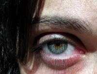 Ojeras: sus causas y cómo prevenirlas