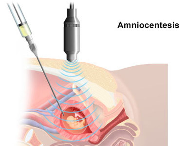 Pruebas prenatales II: Amniocentesis