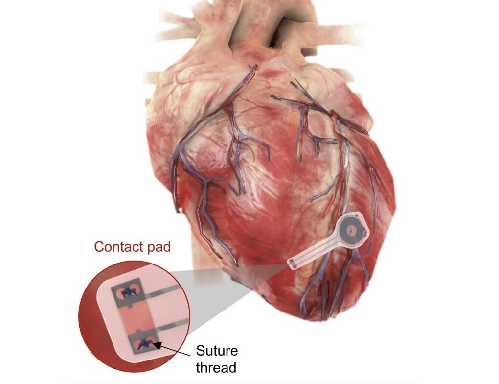 Crean el primer marcapasos biodegradable que se disuelve en el cuerpo una vez el corazón ya late correctamente