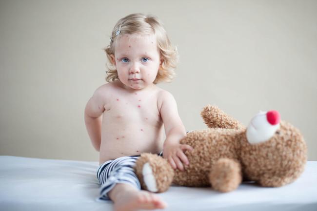 Un bebé de 20 meses no vacunado se contagia de sarampión en País Vasco