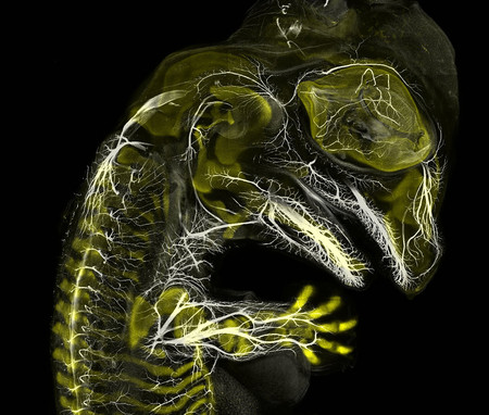 3 Alligator Embryo Stage 13 Nerves And Cartilage