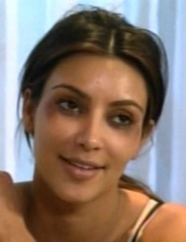 Kim Kardashian otra loca con el botox