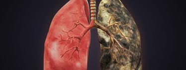 Actividad física y EPOC (Enfermedad Pulmonar Obstructiva Crónica)