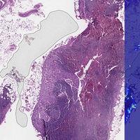 La IA de Google es mejor diagnosticando el cáncer de mama avanzado que los patólogos humanos