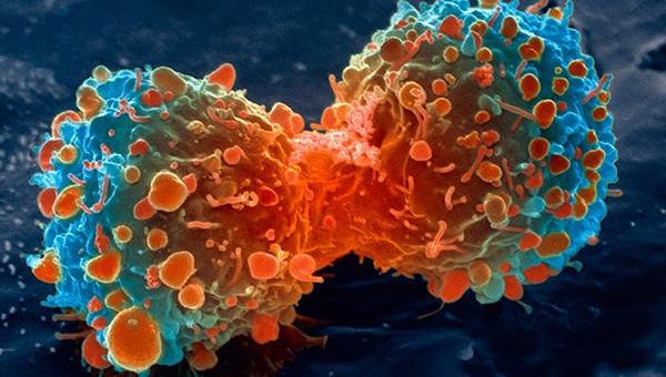 Se creado una prueba universal de cáncer que detecta células mutantes en solo 10 minutos