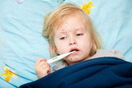 Las fiestas del sarampión, ¿no deberían prohibirse?