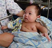 Alarmante aumento de bebés nacidos con malformaciones en China