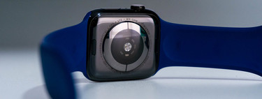 The Apple Watch detects cardiac ischemia in an 80-year-old woman who was never found in the hospital