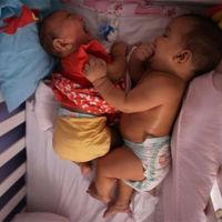 Los gemelos que podrían tener la cura para el virus Zika: uno de ellos nació sano