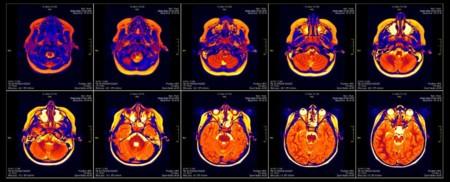 ¿Todos los estudios de los últimos 15 años con resonancia magnética están mal?