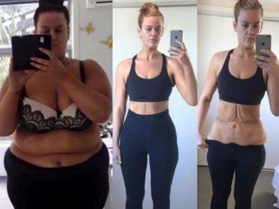 Simone Anderson: la historia del antes, durante y después de perder 85 kilos